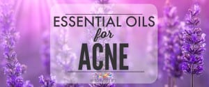 Essential Oils for Acne – Natural Treatment for Clear Skin